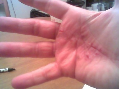 Best Way To Protect Your Hands If You Have Eczema Or